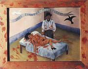 A Few Small Nips 1935 By Frida Kahlo